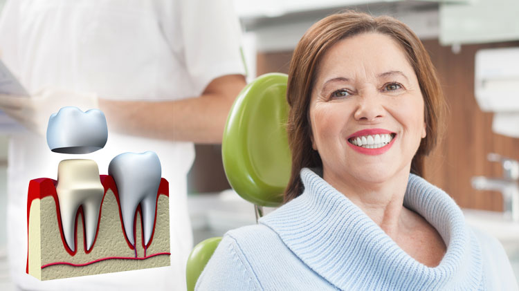 Precautionary Steps Needed to Take Care Of Your Temporary Dental Crown
