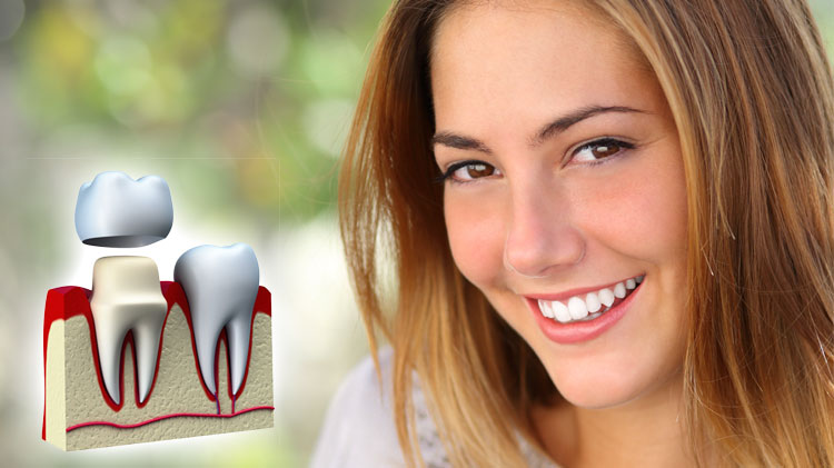 Situations where Dental Crowns may be needed