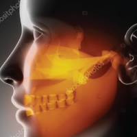 Temporo- mandibular Disorders